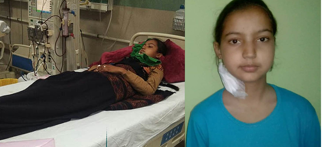 poor Solan girl dies of kidney failure